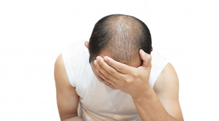 5 Best Affordable Hair Loss Treatment Clinics In Delhi India